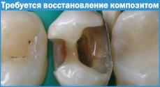 klasifikaciakompozitov002