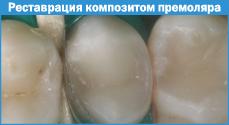 klasifikaciakompozitov003